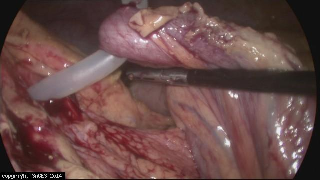 PEG through Transverse Colon