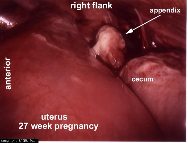 appendicitis in a woman 27 weeks pregnant