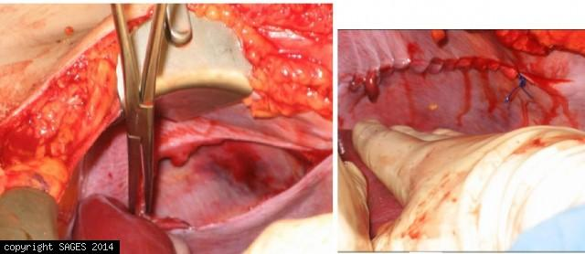 Traumatic Rupture of Diaphragm
