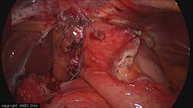 Paraesophageal Hernia – anterior fundoplication