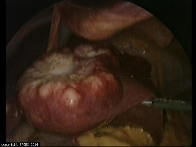 Colorectal Liver Metastasis