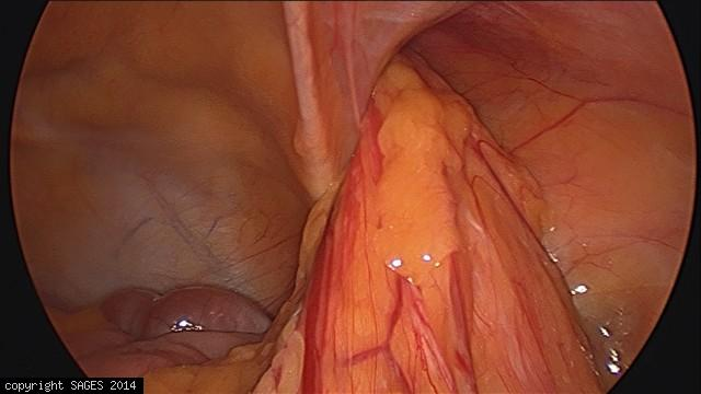 Incarcerated right inguinal hernia