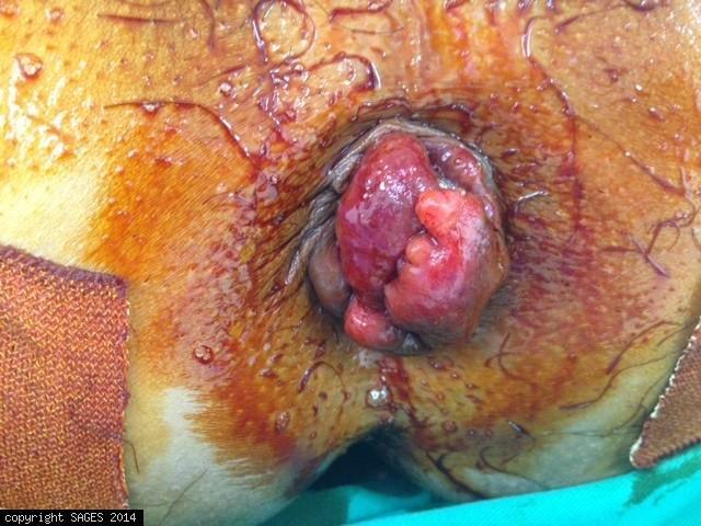 Huge prolapsed haemorrhoids