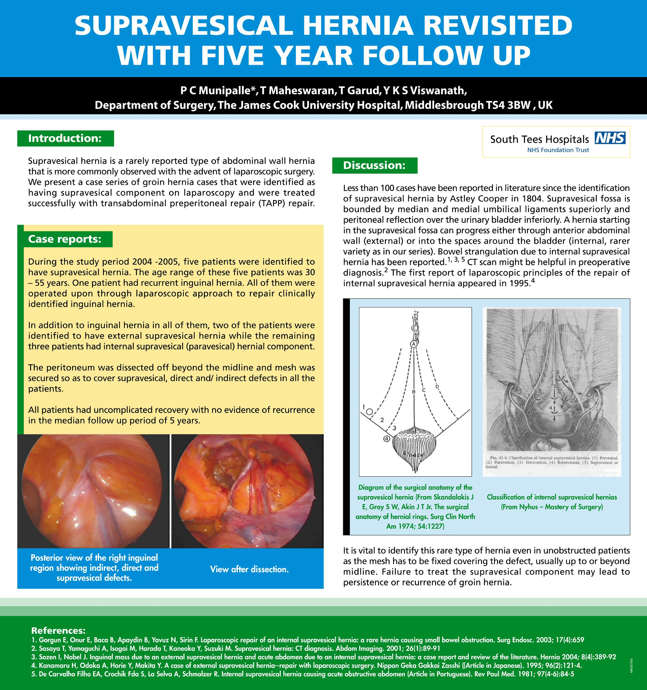 Supravesical Hernia Revisited, with 5 Year Follow Up - SAGES ...