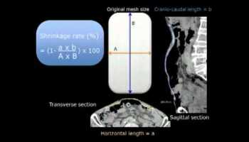 Sutureless Fixation of Onlay Ventral Hernia Repair Review of