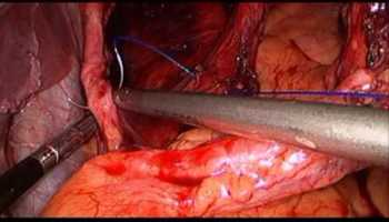 Laparoscopic Management of Hiatal Hernias in Difficult Cases