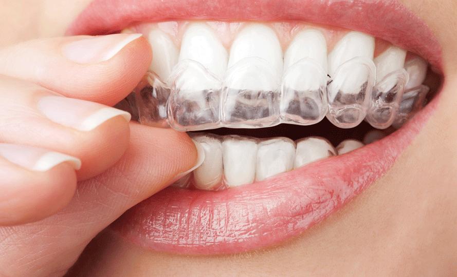 Diş İmplantı Fiyatları
