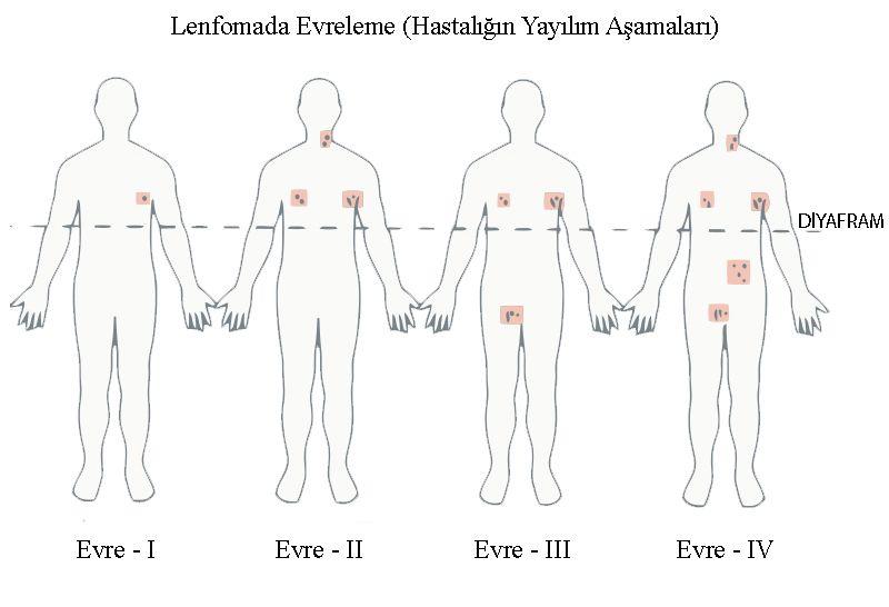 Lenfoma Kanseri