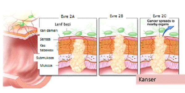 Lenfoma B Semptomları