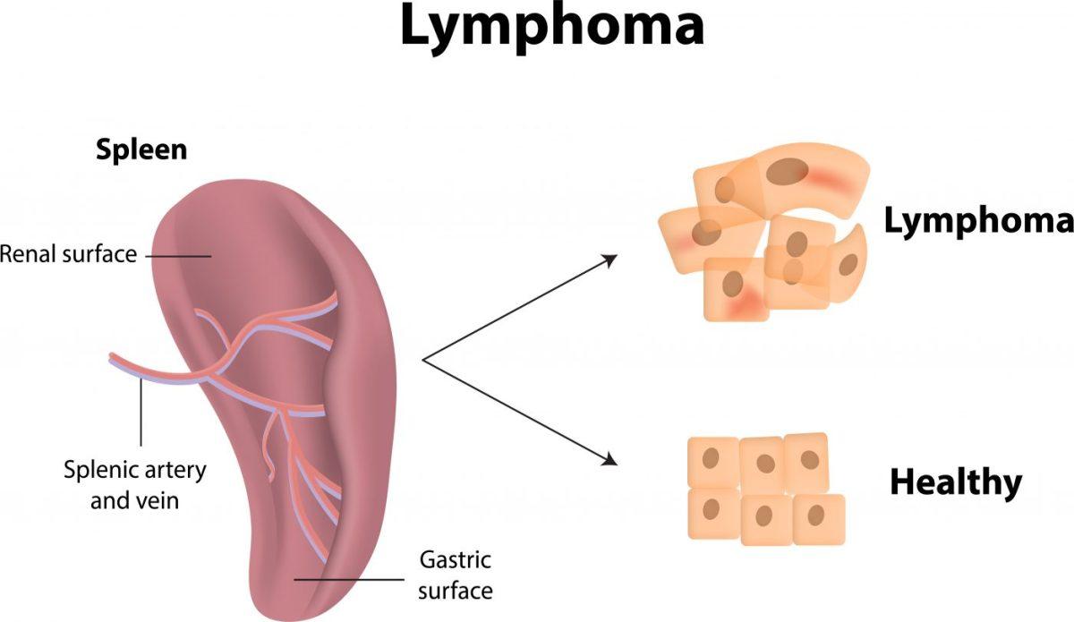 Lenfoma Kanseri 3.Evre