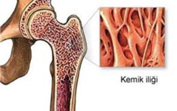 Kemik iliği aspirasyon ve biyopsisi nedir nasıl yapılır?