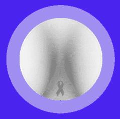 breast-rehabilitation11