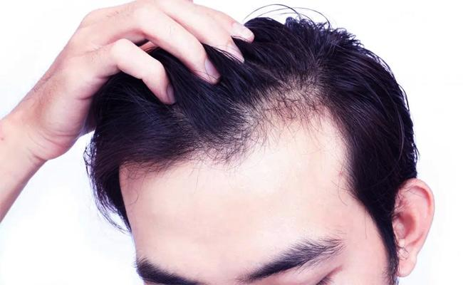 Here Are 5 Benefits Of Using Curd On Your Hair Does Wonders - Sakshi