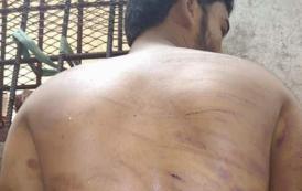 العالم يتحدث عن سجون سرية للإمارات في عدن وحضرموت