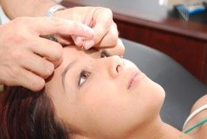 ¿Quieres una piel joven? Prueba la acupuntura estética
