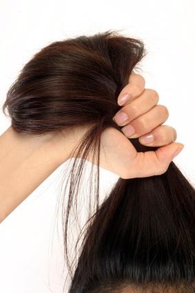 Alopecia, Caida del pelo
