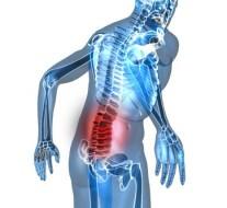 Dolor lumbar: Consejos efectivos para eliminar el dolor de espalda