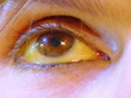 ¿Ojos amarillos? Causas y Tratamiento Natural
