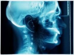 Hidrocefalia (agua en el cerebro): causas, tipos y tratamiento natural