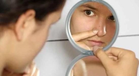 cicatrices del acne tratamiento