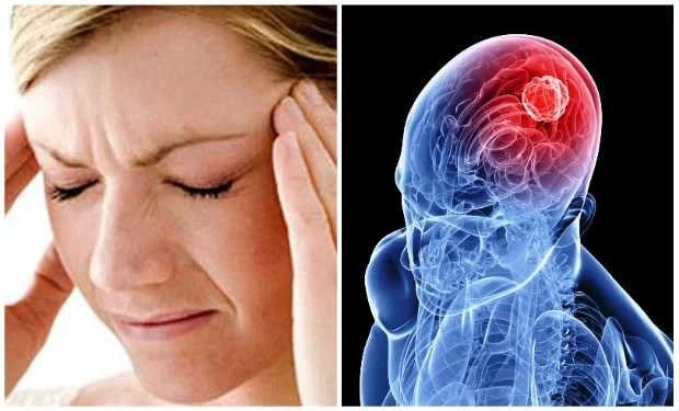 accidente cerebro vascular señales
