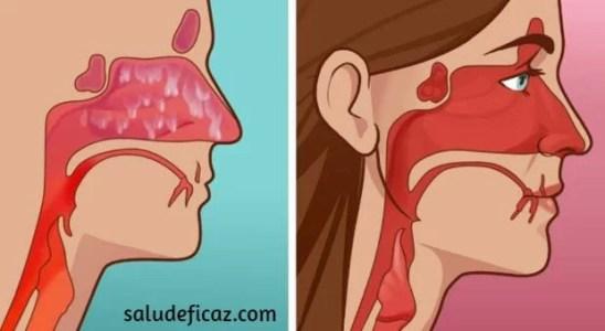cómo curar la sinusitis en 20 segundos