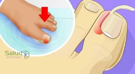 4 simples pasos para curar la uña encarnada