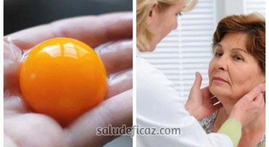 Comer 1 yema de huevo al dia puede curar problemas de tiroides