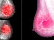 Los pacientes con cáncer enfrentan una alta mortalidad por COVID-19, según estudio del Montefiori