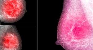 La OMS lanza una iniciativa para evitar 2,5 millones de muertes por cáncer de mama hasta 2040