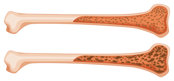 Osteoporosis, su definición, diagnóstico y tratamiento