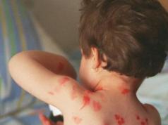 La humanidad celebra 40 años de haber erradicado una de las enfermedades más mortales: la viruela