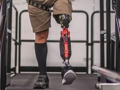 Diseñan una pierna protésica inteligente con inteligencia artificial para dar pasos perfectos