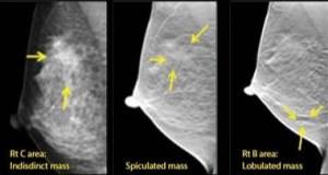 Los radiólogos que usan IA pueden detectar más casos de cáncer de mama con menor recitación por falsos positivos