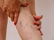 Uno de cada seis pacientes hospitalizados con Covid-19 padece trombos, según estudio
