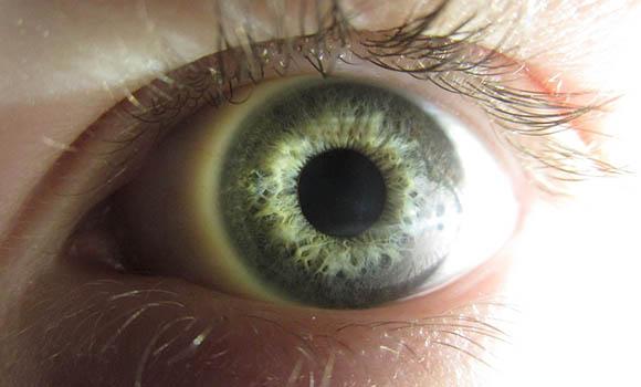 dolor en el ojo izquierdo cuando lo muevo