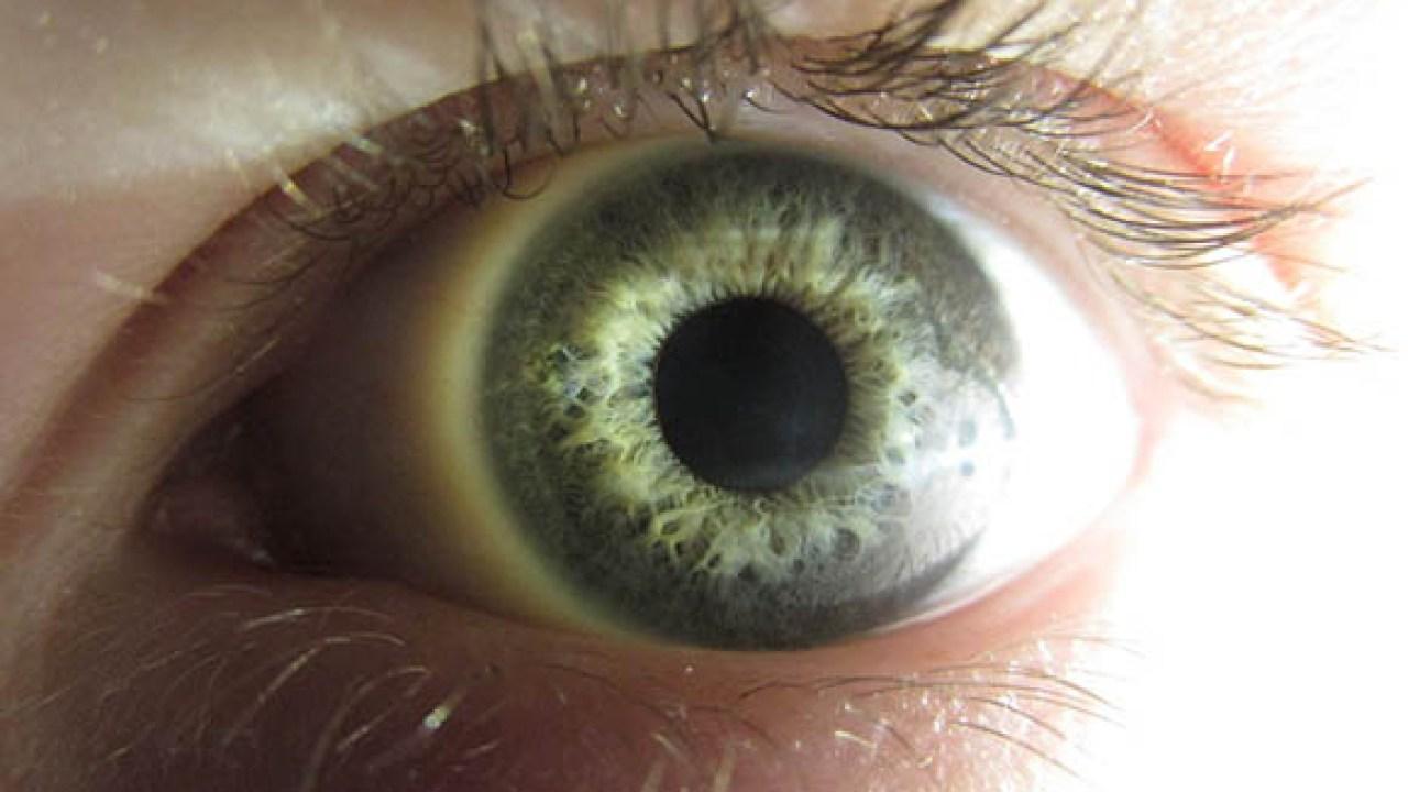 puntos rojos debajo delos ojos