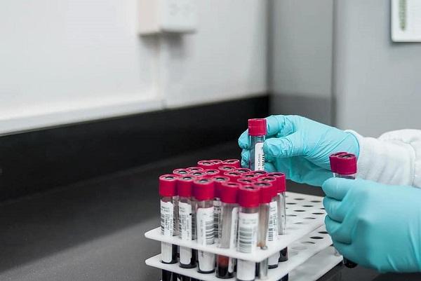 Importante adelanto para prevenir las crisis de poliartritis reumatoide