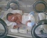 ¿Qué Cuidados Necesita un Bebé Prematuro?