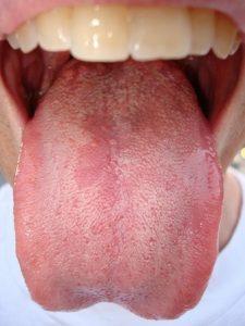 Verrugas en la lengua causas
