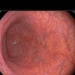 Gastritis: Tratamiento Natural con Remedios y Alimentación