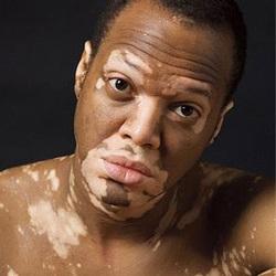 Vitiligo no Segmentado: Causa Principal y Causas Secundarias