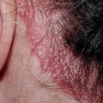 Remedios para la Psoriasis en el Cuero Cabelludo