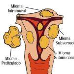 ¿Cómo deshacerse de los fibromas pediculados?
