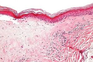 Psoriasis Genital en Hombres y Mujeres