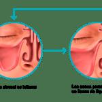 Sinusitis, Remedios Caseros