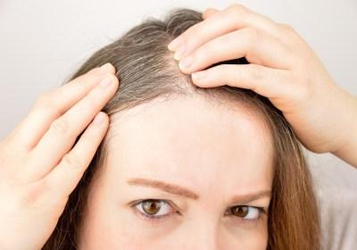 Prevenire i capelli bianchi