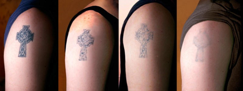 Searching for Tattoo Removal Near Me? Visit Us in Miami!