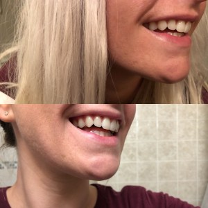 Smile Brilliant Before & After