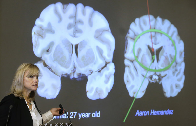 Aaron Hernandez's MRI Raises Concerns About Kids and Football